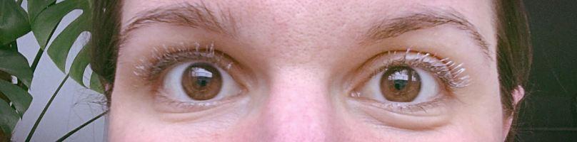 oog 2